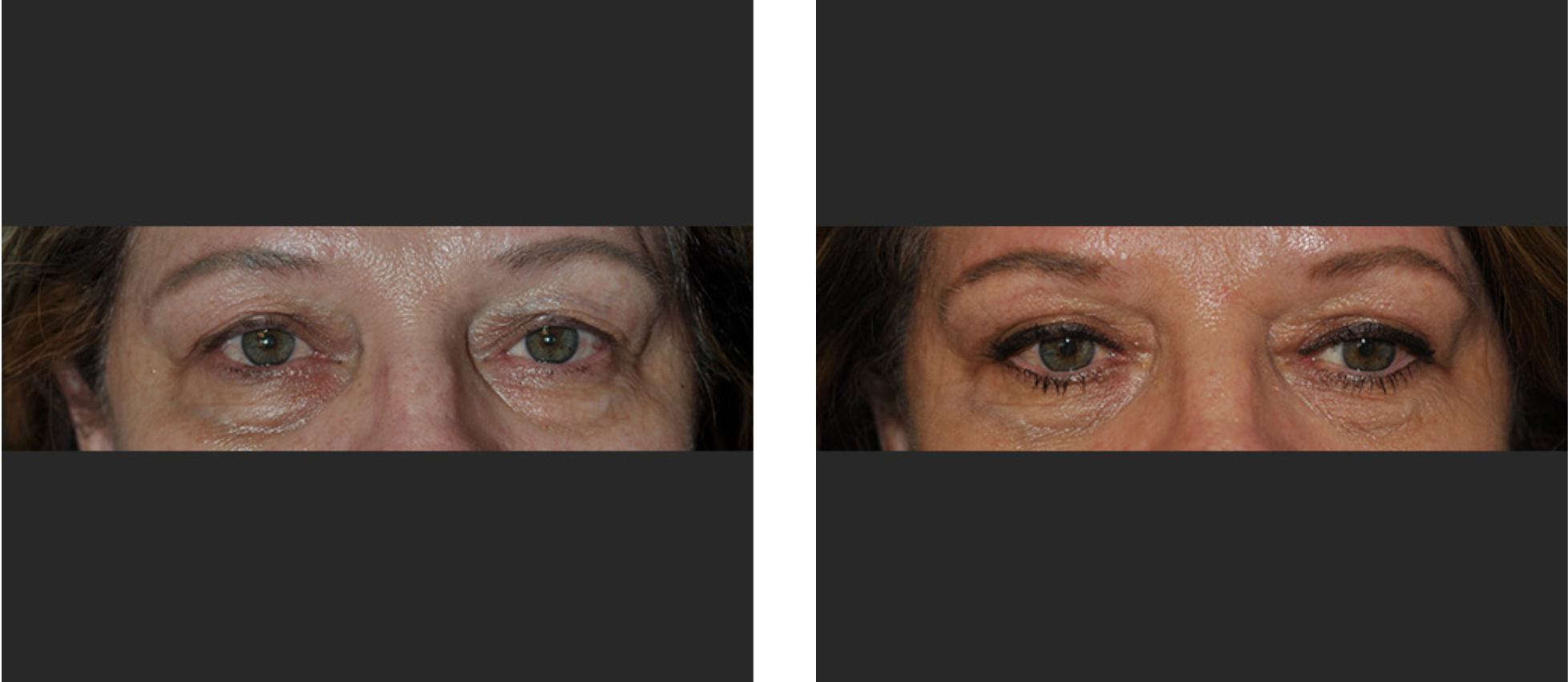 Before and After Eyelid Surgery Los Angeles